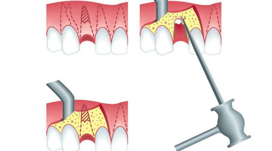 Ампутація кореня зуба
