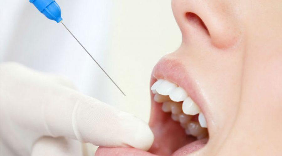 Анестезія в стоматології