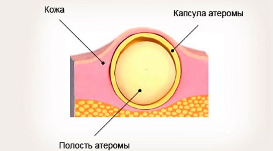 Атерома в стоматологии
