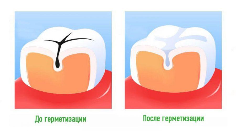 Герметизація фісур