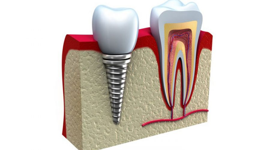 История зубных имплантатов