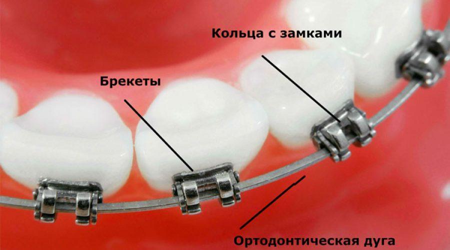 Кільце ортодонтичне