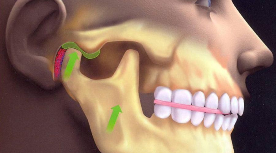 Оклюзія в стоматології