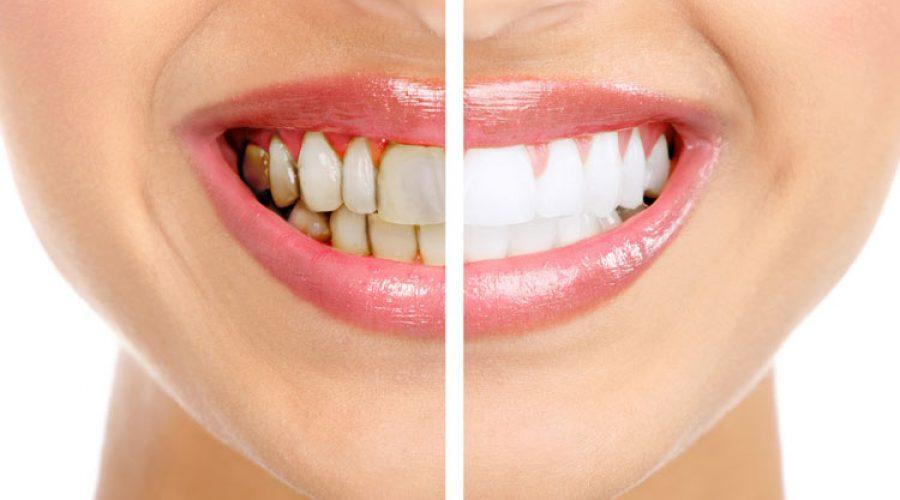 Отложения зубные