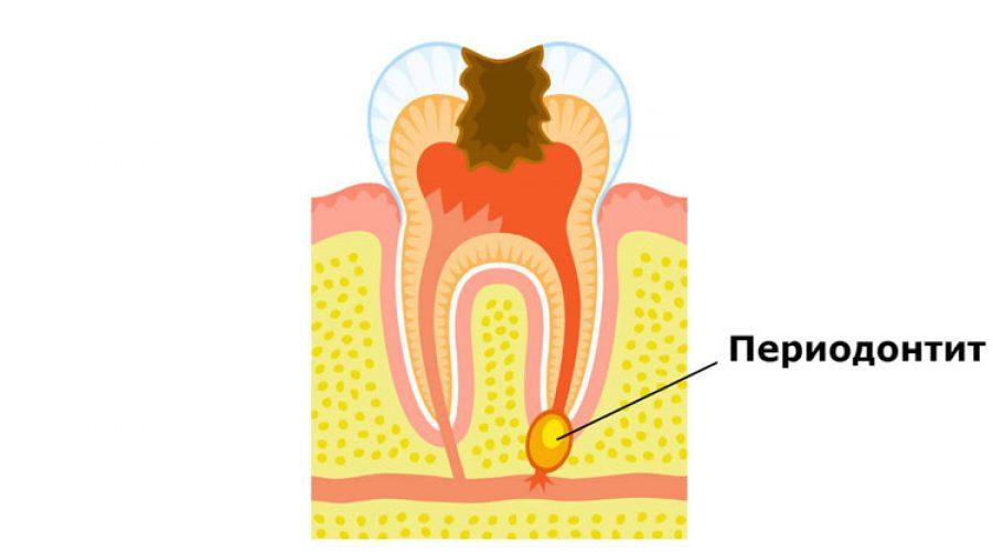 Періодонтит