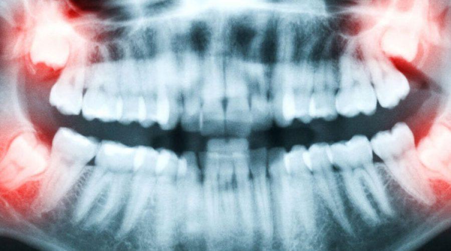 Проблемы, которые могут вызвать зубы мудрости