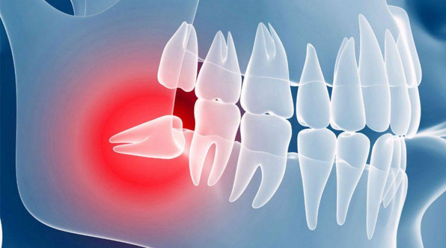 Ретенція зубів