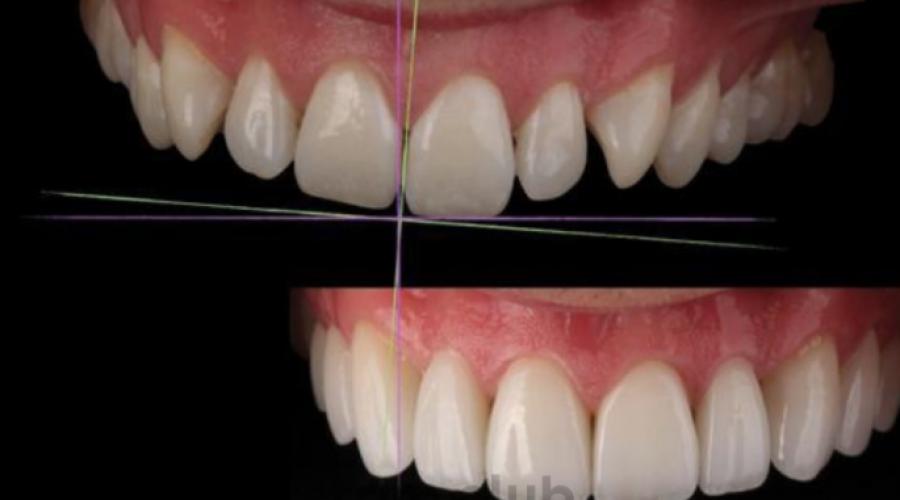 Сім головних порушень при формуванні дизайну посмішки