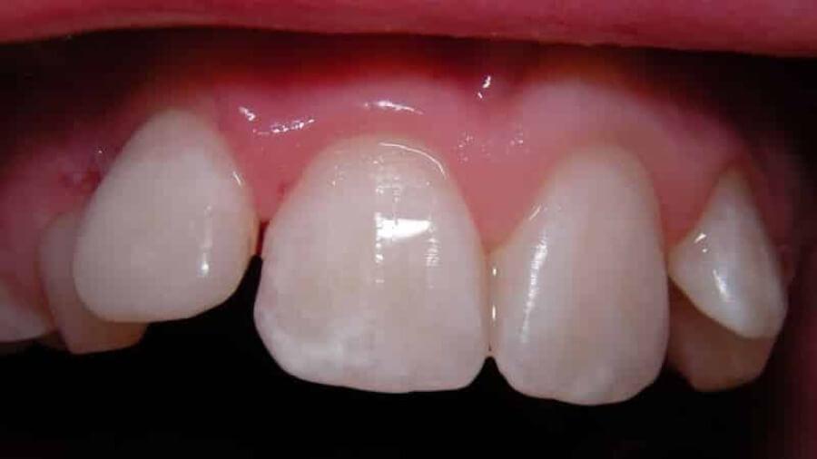 серебрение зубов детям