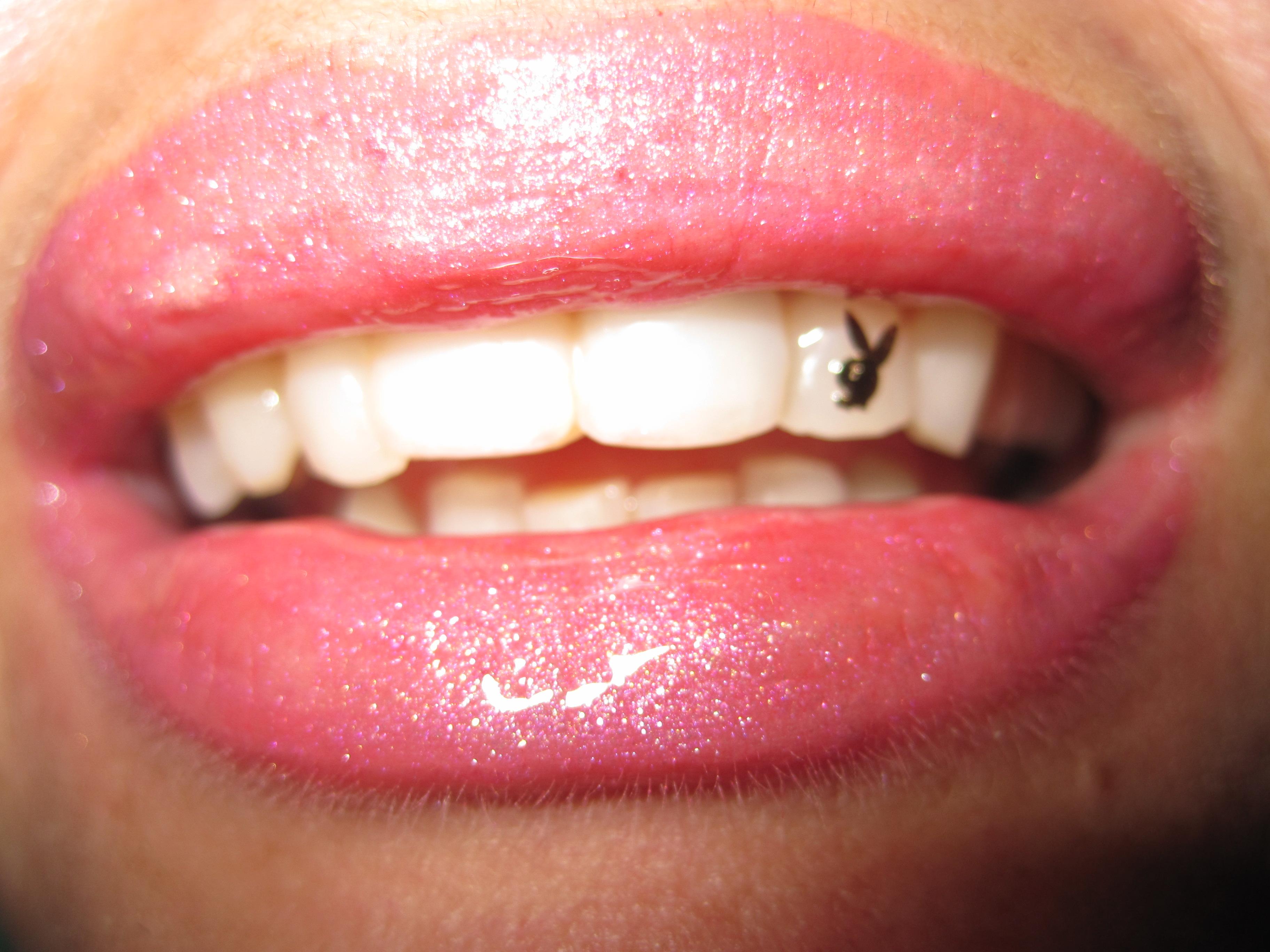 Скайсы – улыбка на миллион без вреда здоровью