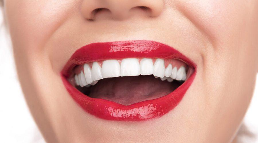 Стоматологічні матеріали, що не піддаються фарбуванню