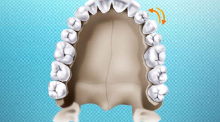 Транспозиція зубів