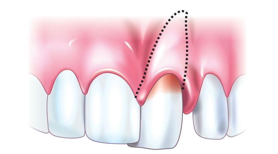 Травми зубів