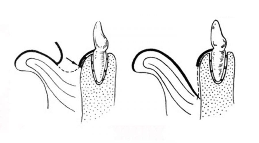 Вестибулопластика