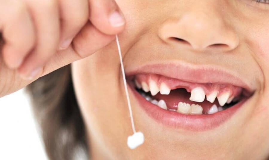 випадання молочних зубів