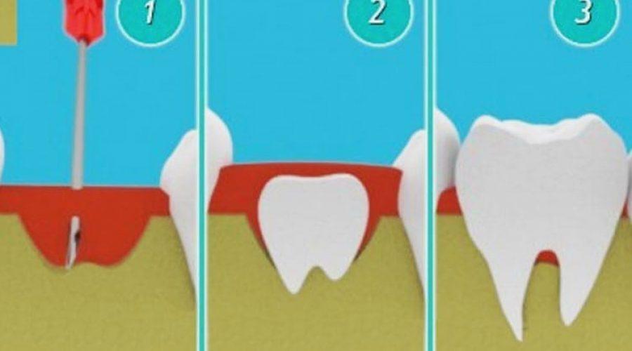 Вирощування зубів