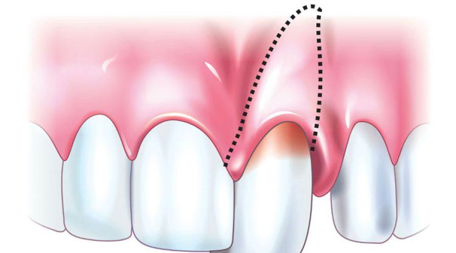 Вивих зуба