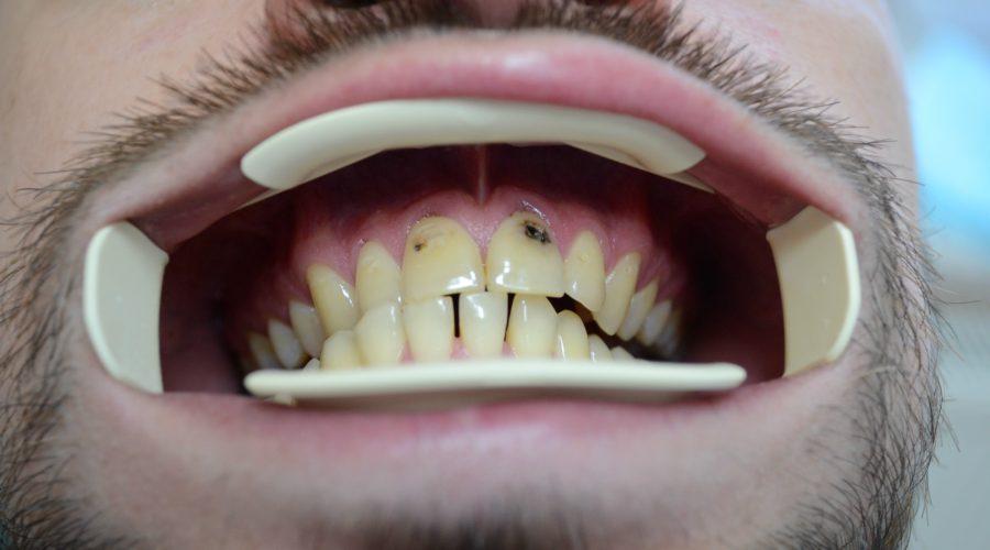 Унікальний наноматеріал, що захищає зуби від карієсу